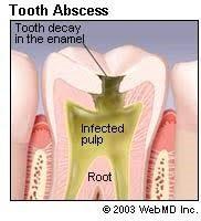 Abscess Tooth