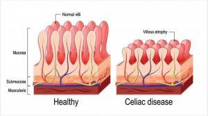 Celiac Disease