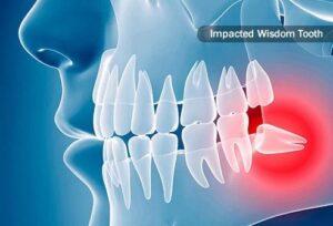 Wisdom tooth pain unbearable